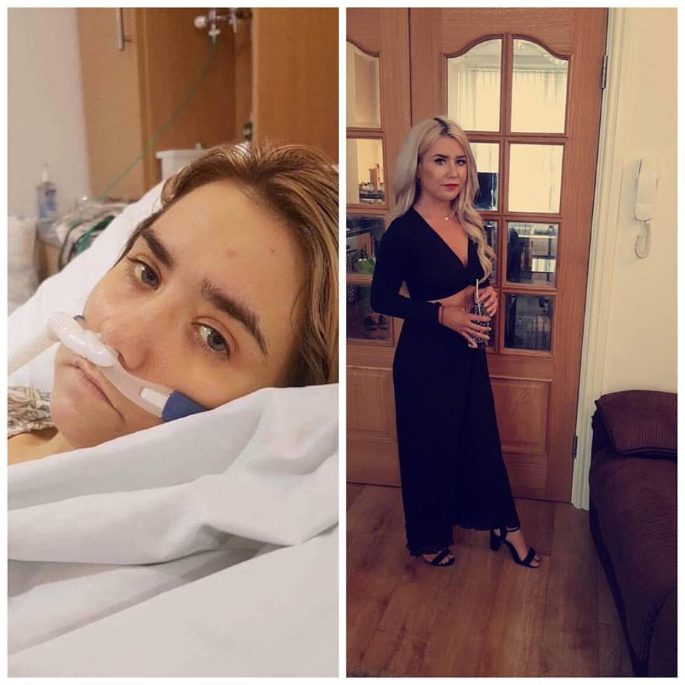 Two sides to the story - Danielle Blore from Caernarfon has been very open about her life with Cystic Fibrosis. PICTURE: Facebook.